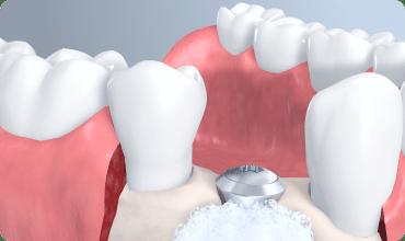 illustration of a dental abutment