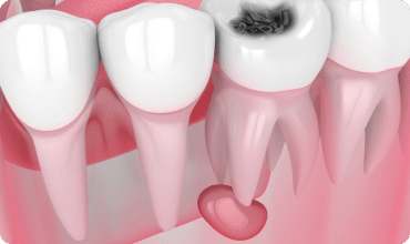 illustration of dental cyst forming under decayed tooth