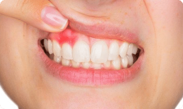 inflamed gum in the top jaw