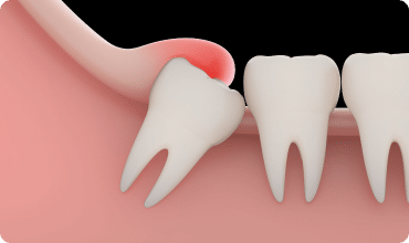 impacted wisdom tooth under the gum line