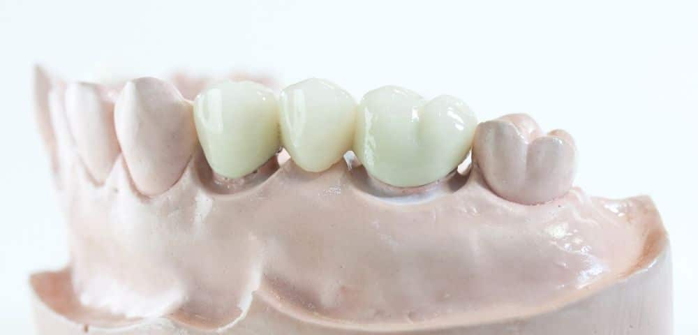 example of a 3 piece tooth bridge