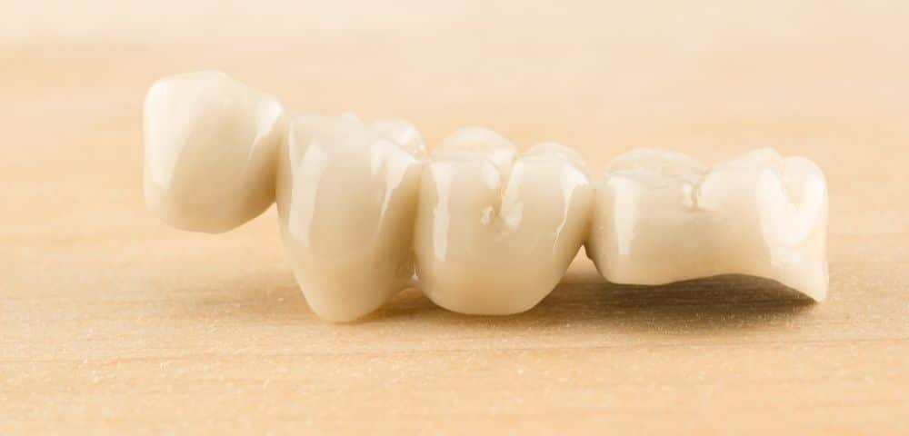 example of a 4 piece tooth bridge