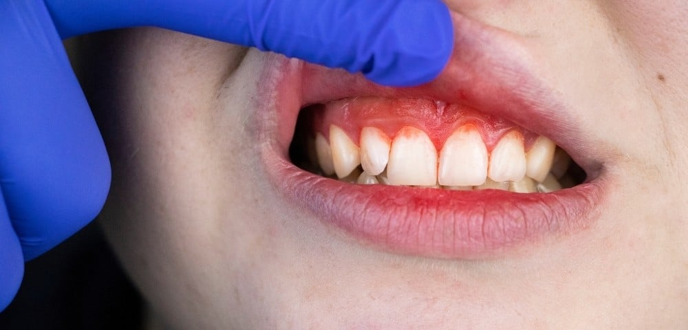 inflamed gums that are showing signs of slight bleeding
