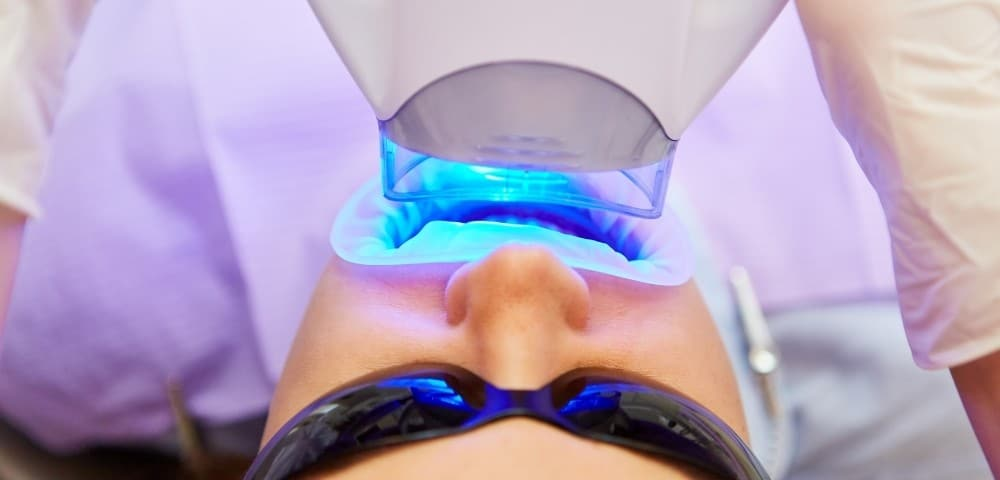 bleaching lamp used on patient during teeth whitening appointment