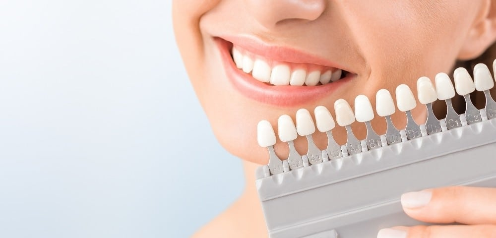 color scale is used to determine exact color of patient's teeth