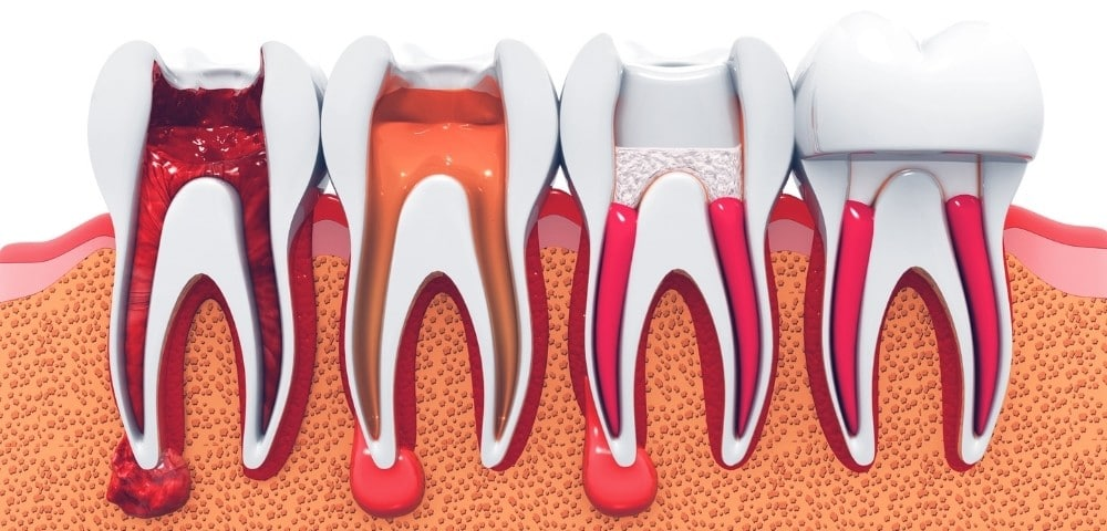 illustration of the entire process of a root canal treatment