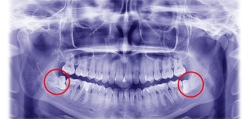 dental xray that highlights two wisdom teeth in the bottom jaw